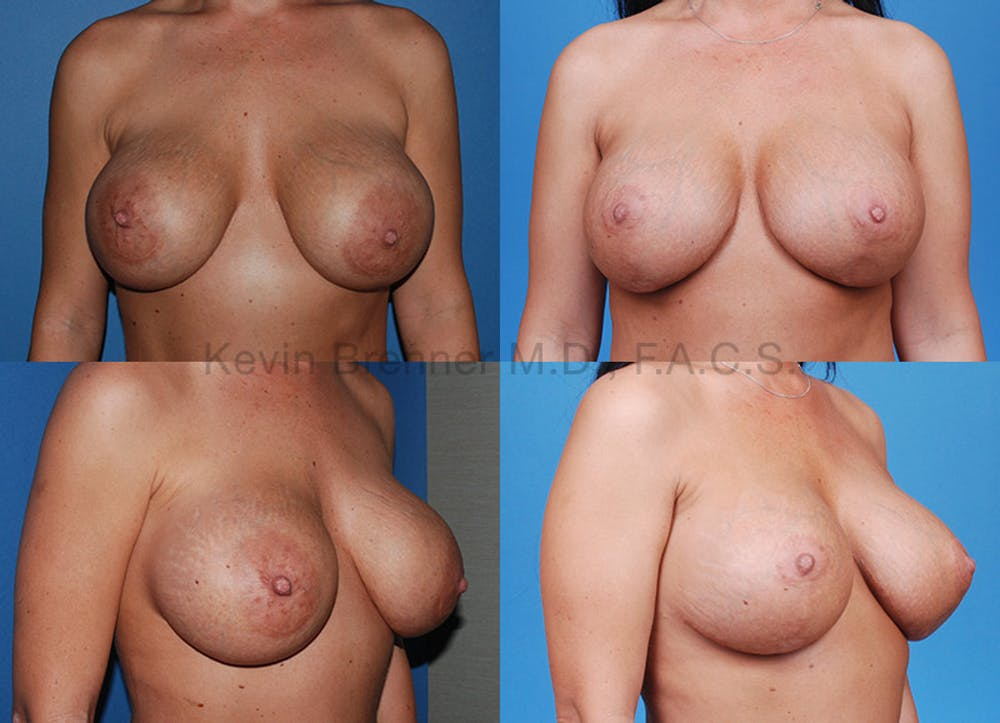 Breast Revision Surgery Gallery - Patient 1482340 - Image 1
