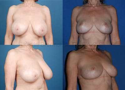 Breast reduction before and after 3