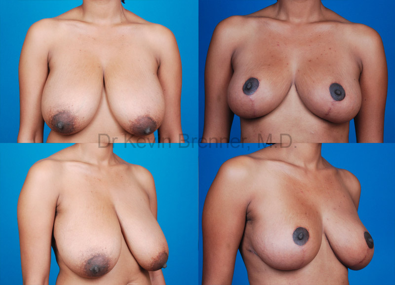 Breast Lift & Reduction Gallery - Patient 1482344 - Image 1