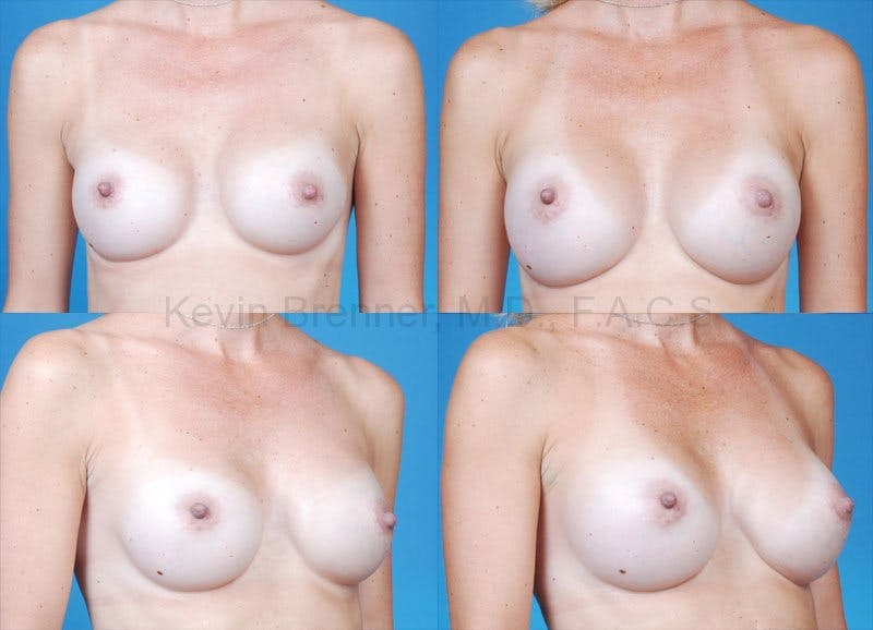 Breast revision before and after 2