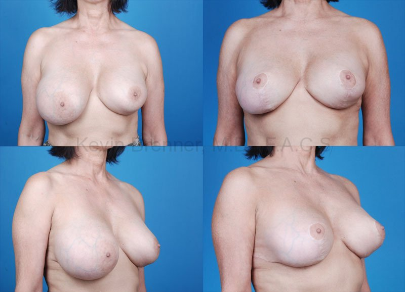 Breast Revision Surgery Gallery - Patient 1482346 - Image 1