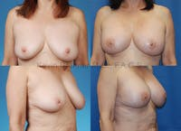 Breast revision before and after 1