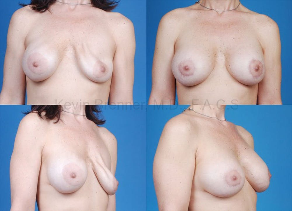Breast Revision Surgery Gallery - Patient 1482350 - Image 1