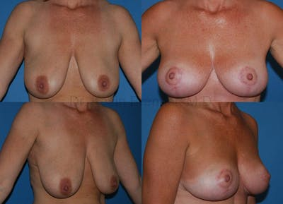 Breast Lift Gallery - Patient 1482351 - Image 12