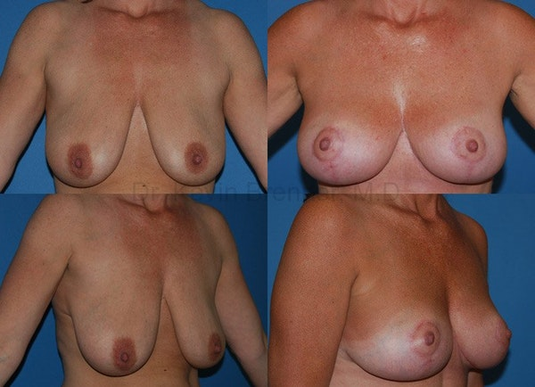 Breast Lift Gallery - Patient 1482351 - Image 1