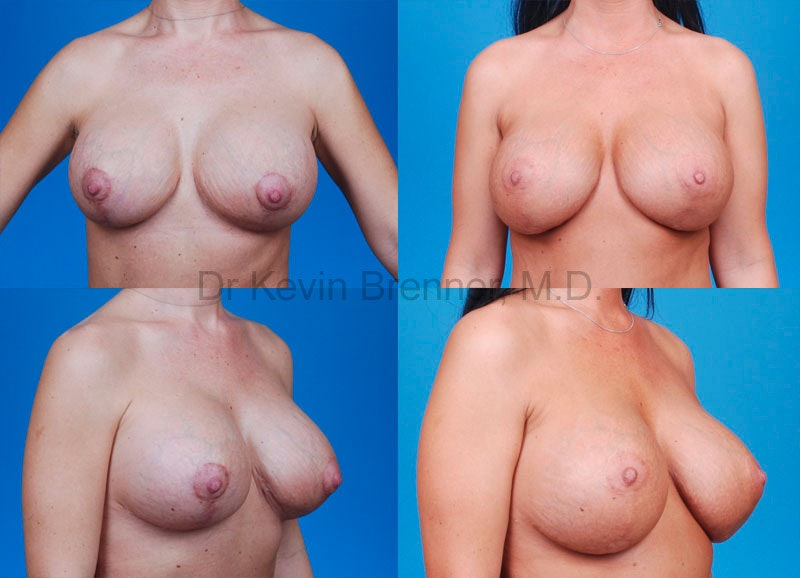 Breast Revision Surgery Gallery - Patient 1482353 - Image 1