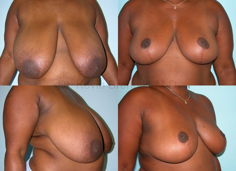 Breast Reduction Gallery - Patient 10131079 - Image 1