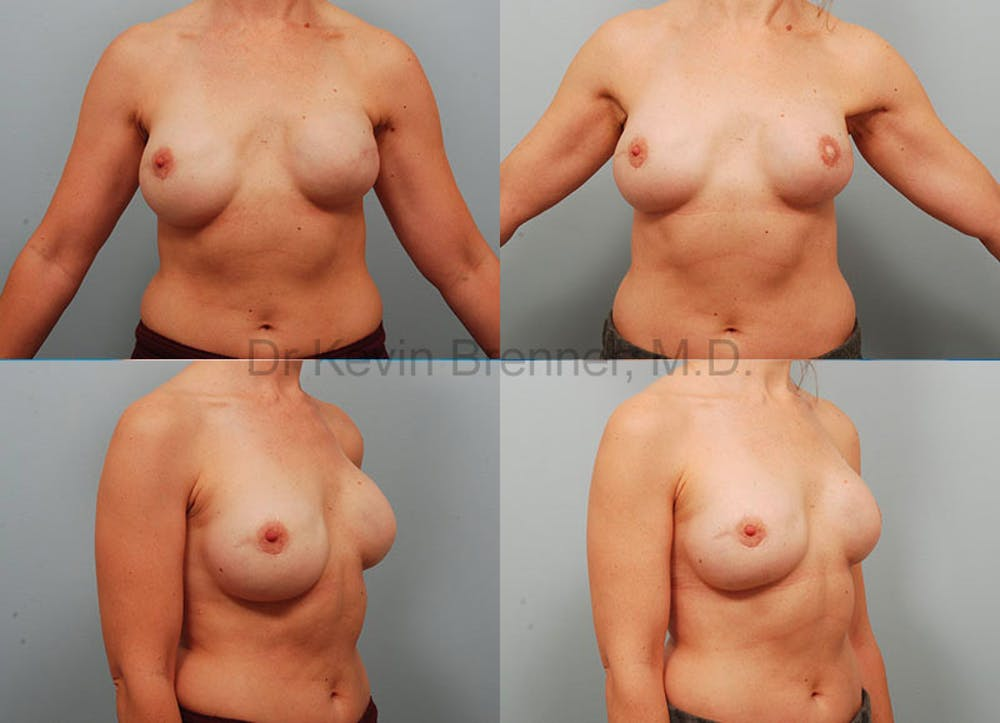Breast Reconstruction Gallery - Patient 1482355 - Image 1
