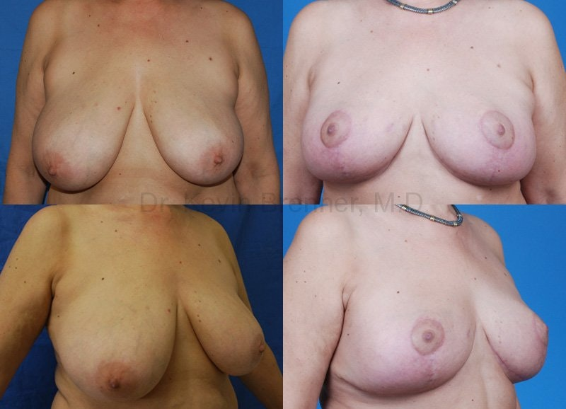 Breast Reduction Gallery - Patient 10131080 - Image 1