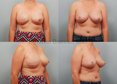Breast Reconstruction Gallery - Patient 1482356 - Image 1