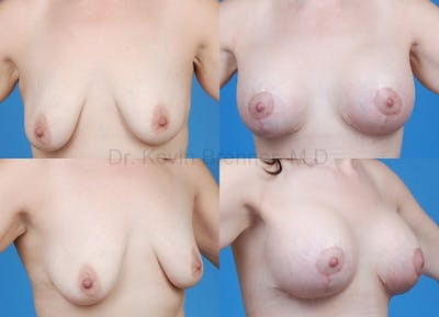 Breast Lift Gallery - Patient 1482357 - Image 13