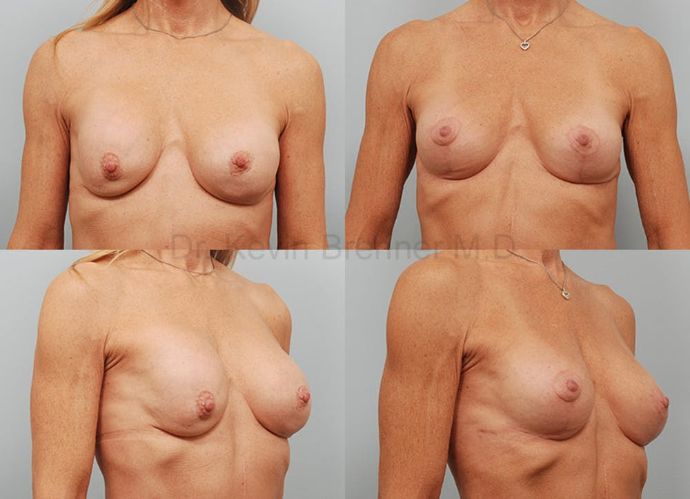 Breast Reconstruction Gallery - Patient 1482358 - Image 1