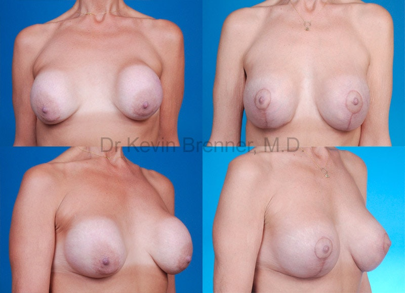 Breast Revision Surgery Gallery - Patient 1482359 - Image 1