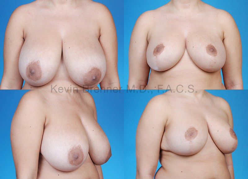 Breast Lift & Reduction Gallery - Patient 1482360 - Image 1