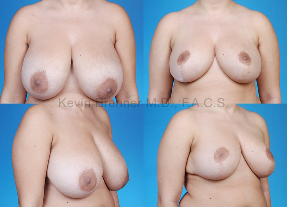 Breast Reduction Gallery - Patient 10131082 - Image 1