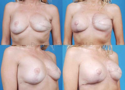 Breast Reconstruction Gallery - Patient 1482361 - Image 1