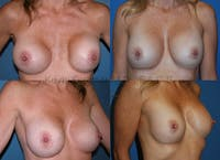 Breast revision before and after 5