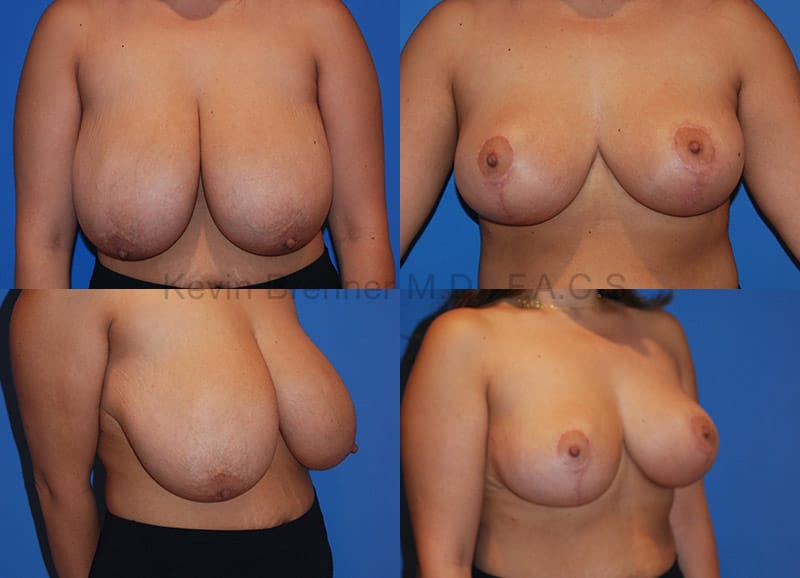 Beverly Hills Breast Reduction before and after photo