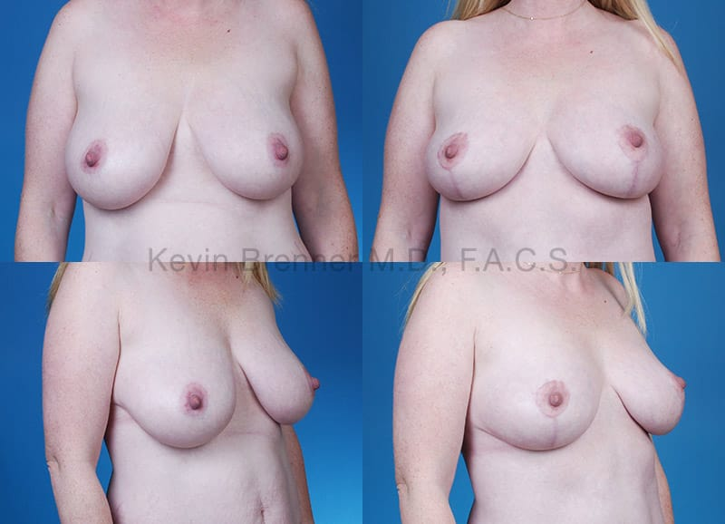 Breast Lift Gallery - Patient 1482367 - Image 1