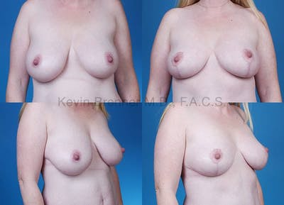 Breast Lift Gallery - Patient 1482367 - Image 15