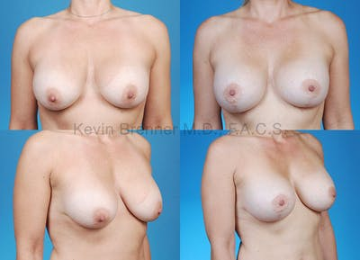 Breast Revision Surgery Gallery - Patient 1482368 - Image 13