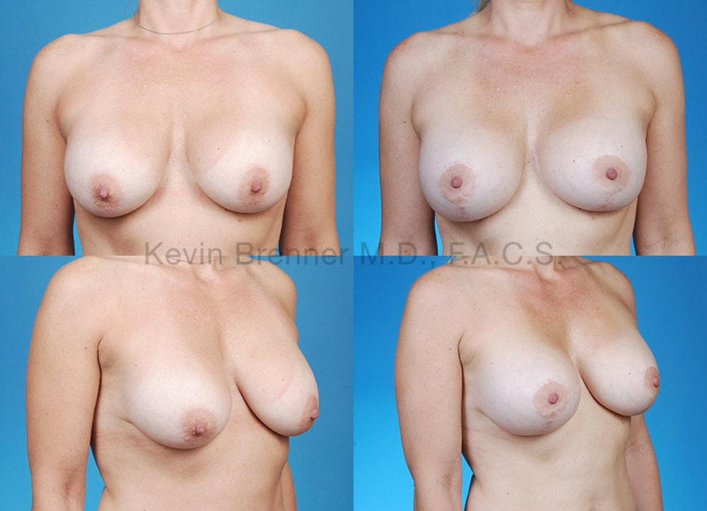 Breast Revision Surgery Gallery - Patient 1482368 - Image 1