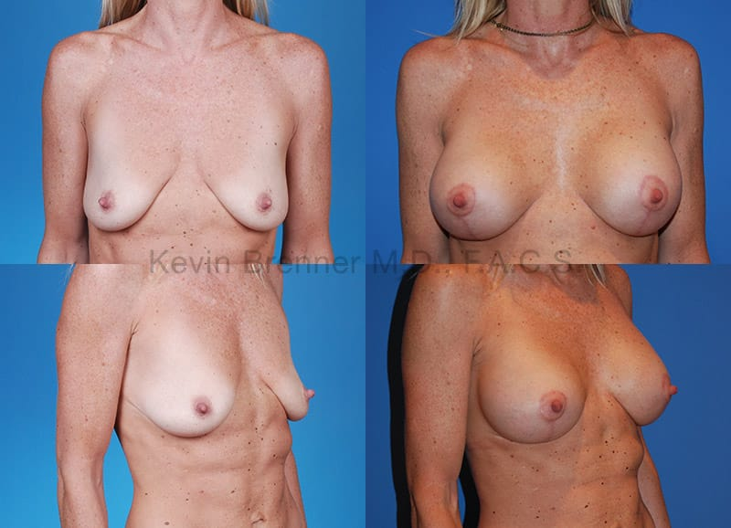 Breast lift before and after 4