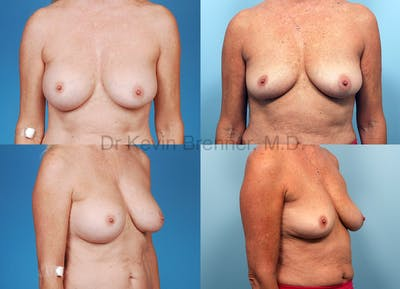 Breast Revision Surgery Gallery - Patient 1482370 - Image 14