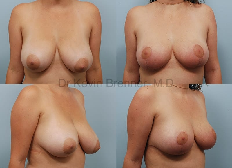 Breast Lift Gallery - Patient 1482371 - Image 1