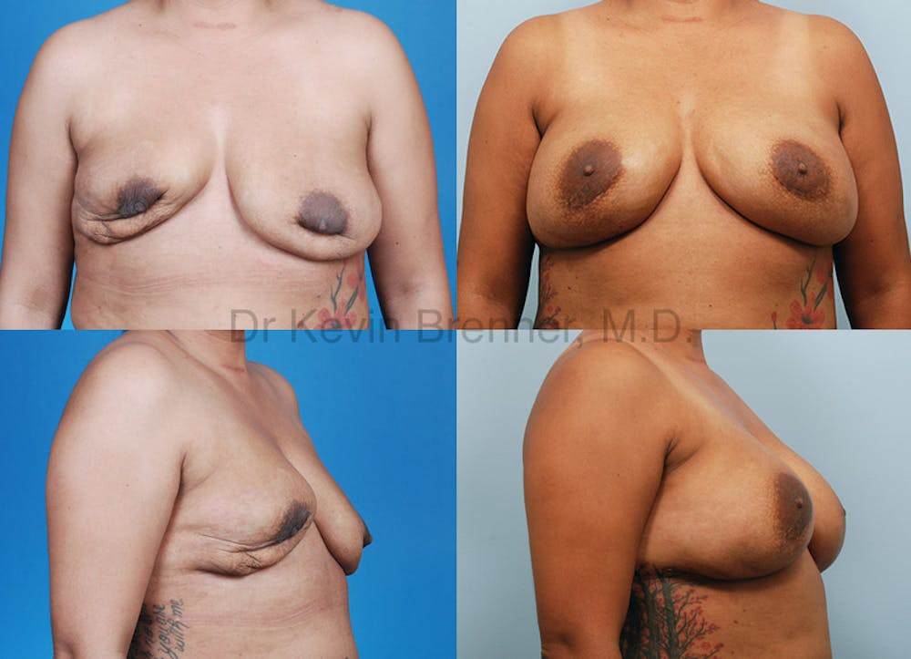 Breast Revision Surgery Gallery - Patient 1482373 - Image 1