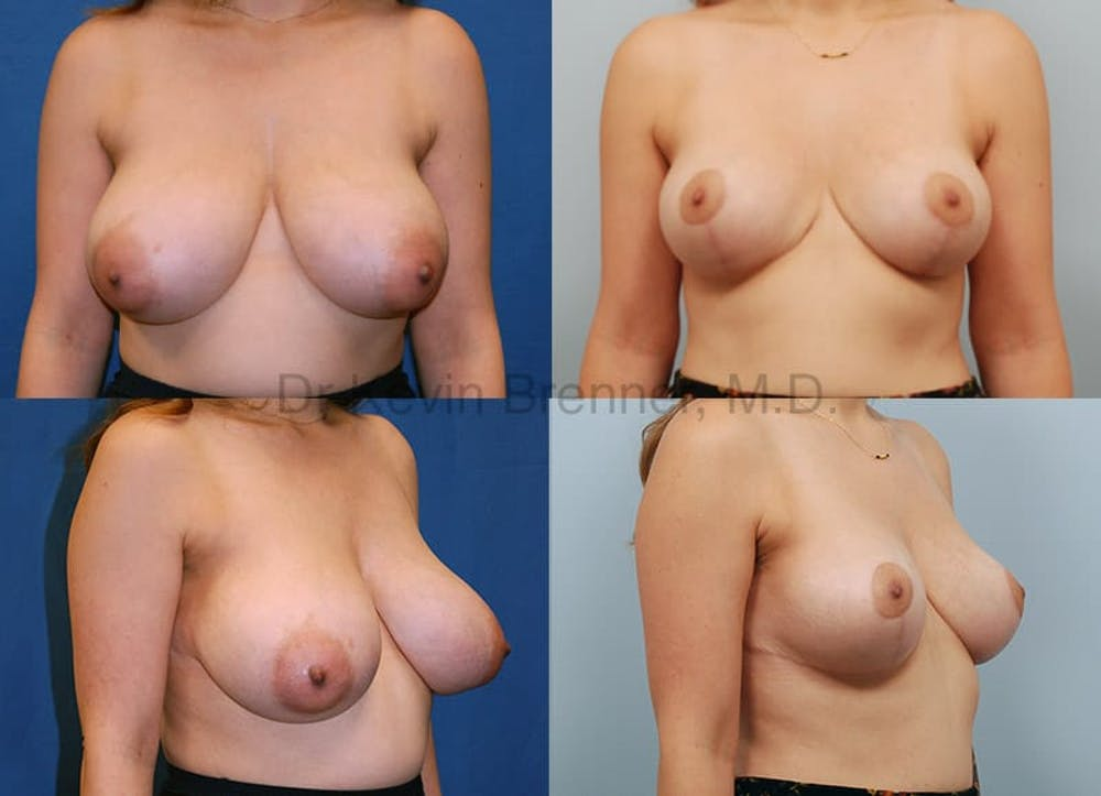 Breast Reduction Gallery - Patient 10131088 - Image 1