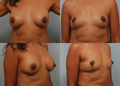 Breast Implant Removal Gallery - Patient 1482374 - Image 1