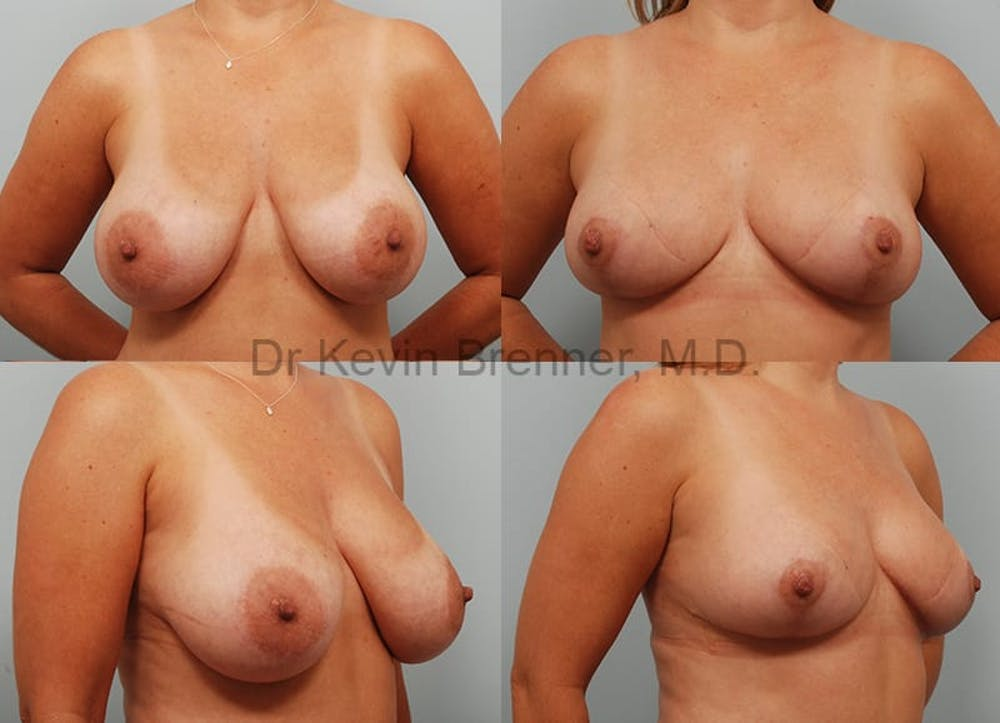 Breast Reduction Gallery - Patient 10131089 - Image 1