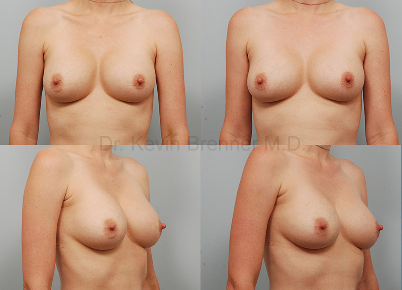 Breast Revision Surgery Gallery - Patient 1482376 - Image 1