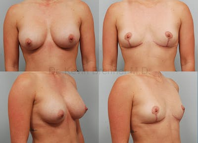 Breast Implant Removal Gallery - Patient 1482377 - Image 2