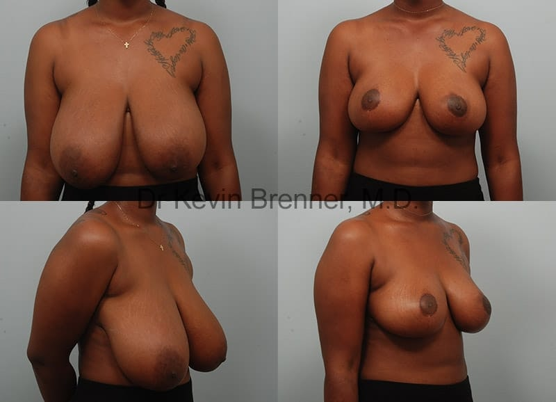 Breast Reduction Gallery - Patient 10131090 - Image 1