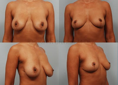 Breast Implant Removal Gallery - Patient 1482380 - Image 1