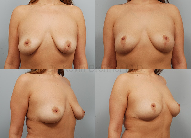 Breast lift before and after 5