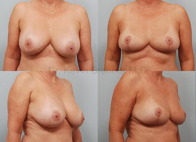Breast Implant Removal Gallery - Patient 1482382 - Image 4