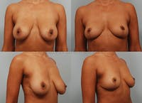 Breast Lift Gallery - Patient 1482383 - Image 1