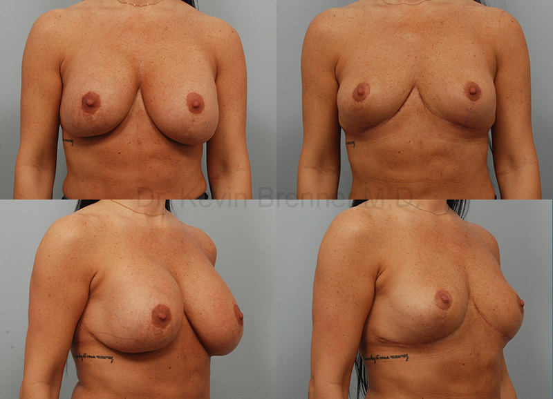 Breast Implant Removal Gallery - Patient 1482384 - Image 1