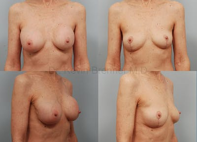 Breast Implant Removal Gallery - Patient 1482386 - Image 6