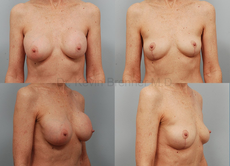 Breast Implant Removal Gallery - Patient 1482386 - Image 1