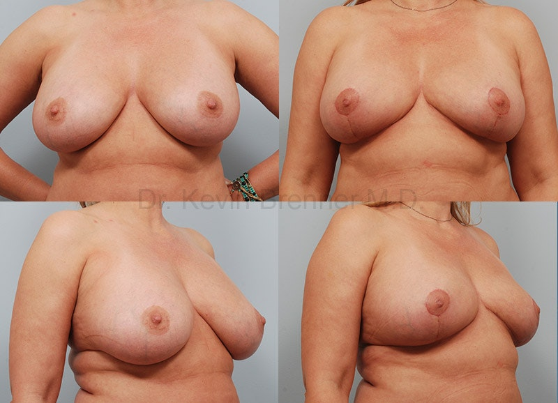Breast Implant Removal Gallery - Patient 1482388 - Image 1