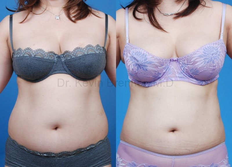 Liposuction Gallery - Patient 1482401 - Image 1