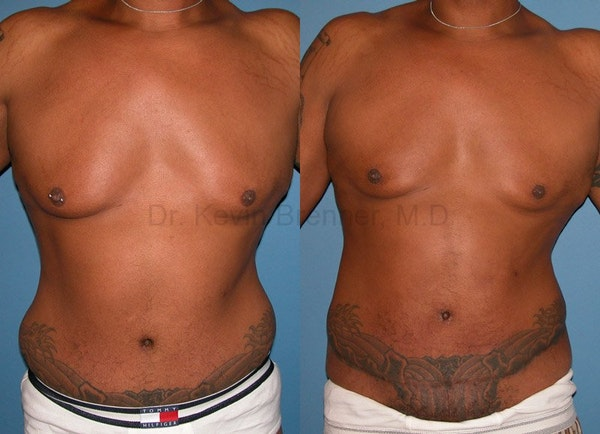 Liposuction Gallery - Patient 1482402 - Image 1