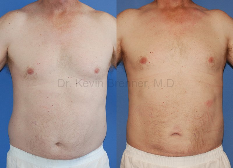 male liposuction patient results
