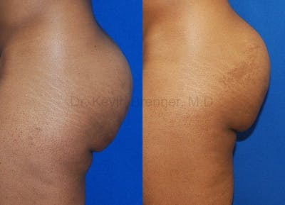 Liposuction Gallery - Patient 1482405 - Image 1