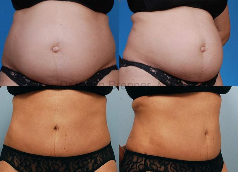 Before and after of tummy tuck in Beverly Hills 2