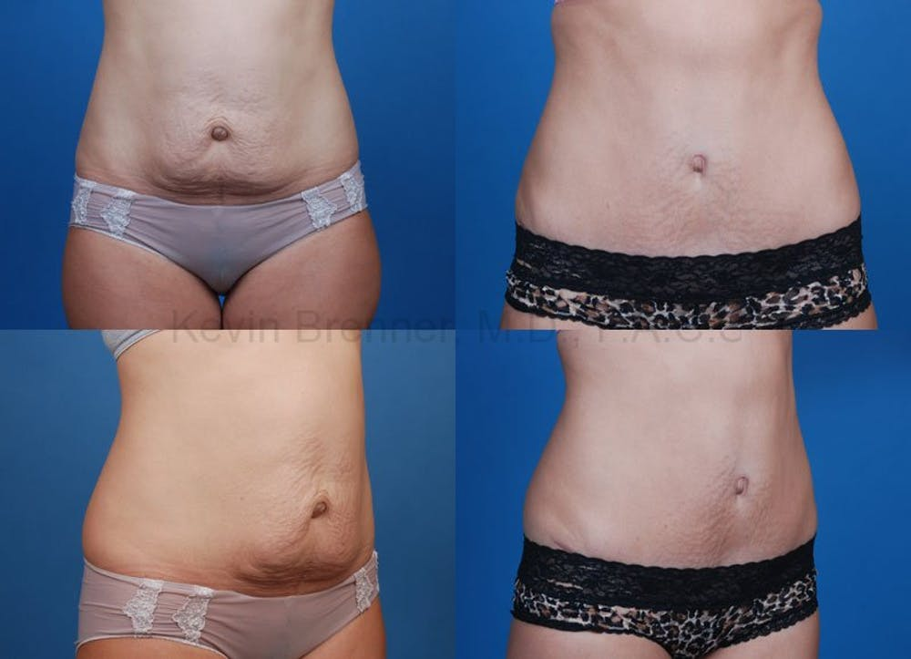 Before and after of tummy tuck in Beverly Hills 3